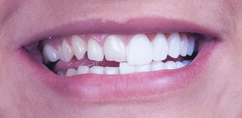 7d16b83b42462 lente contato dental - Clínica Ideal