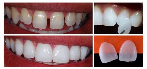 7ebd43e1cee08 lente contato dental preço - Clínica Ideal