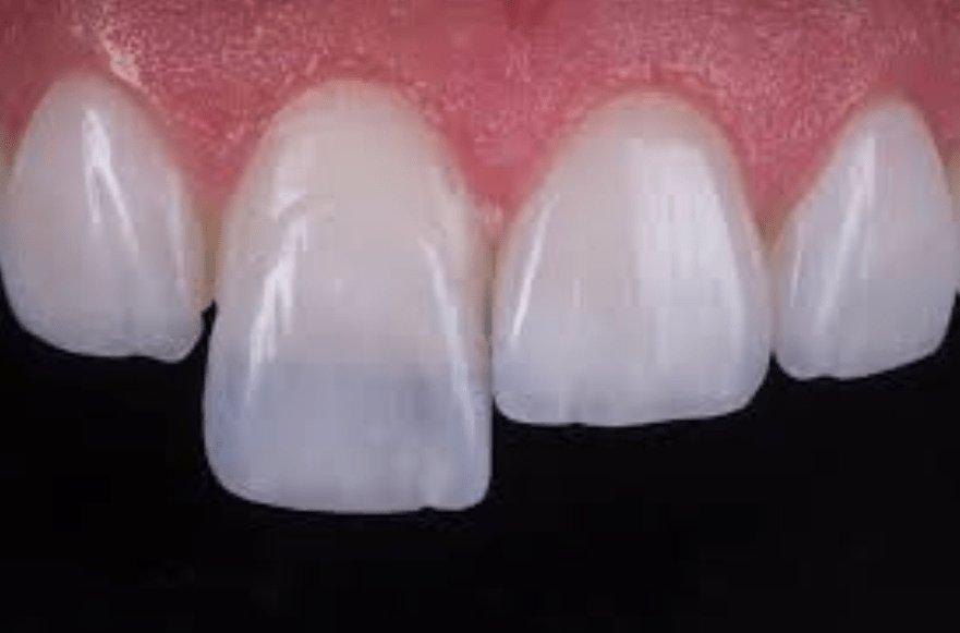 fa51d965805eb lente de contato dental · lente de contato dental ...