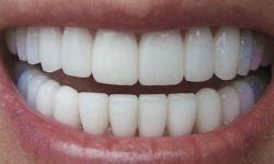 capa de porcelana nos dentes preço
