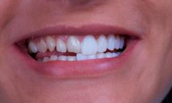 capas de porcelana para dentes