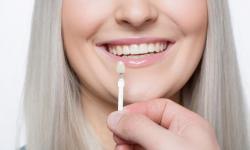 dentista lente de contato