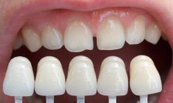 faceta dentaria valor