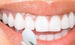facetas de cerâmica para dentes preço