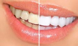 facetas dentarias preço