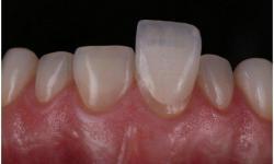 lente de contato de dente
