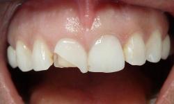 lente de contato dental quanto custa