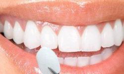 lente de contato porcelana
