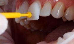 lentes de contato odontologia