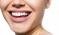 Quanto custa facetas de porcelana nos dentes
