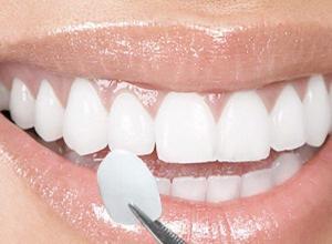 capa para os dentes