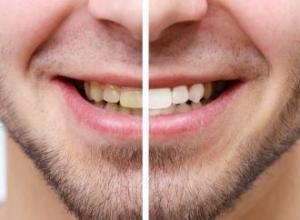 capas de porcelana para dentes preços