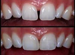 estética dental facetas de porcelana