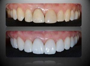 faceta nos dentes quanto custa