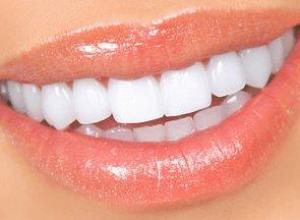 facetas dentarias de porcelana preço