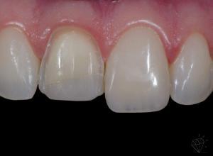 facetas dentarias de resina preço