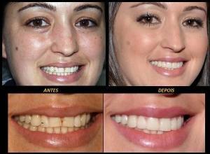 facetas dentes preço