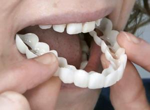 facetas para dentes
