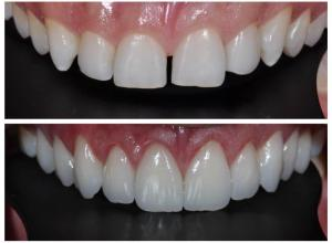 lente contato para dente