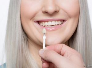 lente contato para os dentes