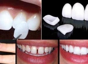 lente de contato dente