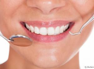 lente de contato nos dentes