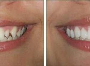 lente de contato odontológica