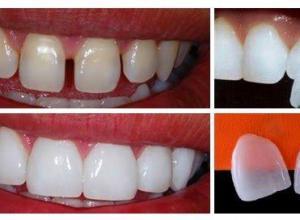 lente de contato para dentes preço