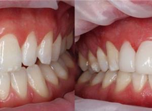 lente de contato para os dentes
