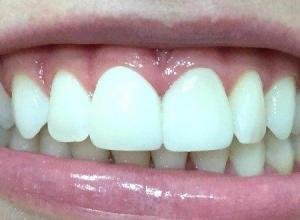 lente de porcelana para dentes