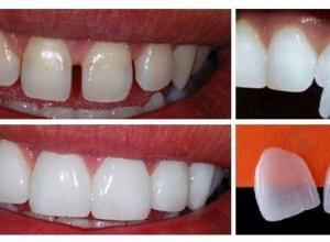 lente dental