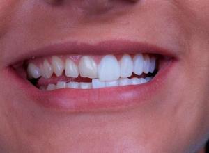 película de porcelana para dentes preço