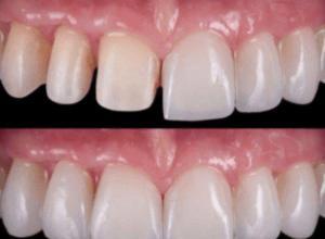 preço de facetas de porcelana para dentes