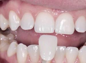 preço de facetas dentárias
