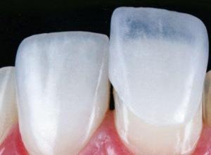 preço lente de contato dental