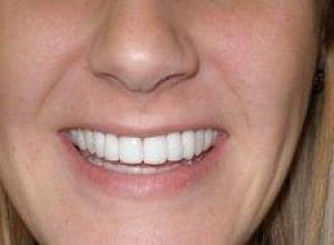 quanto custa um dente de porcelana