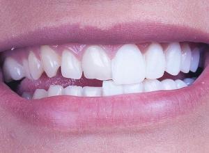 valor lente de contato dental