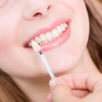 capa de dente de porcelana