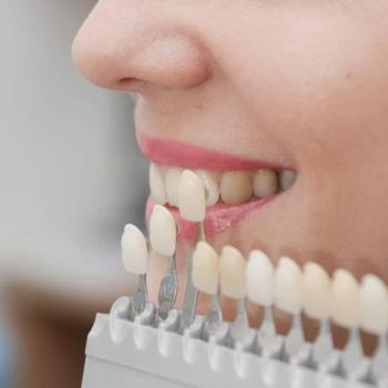capa de porcelana nos dentes