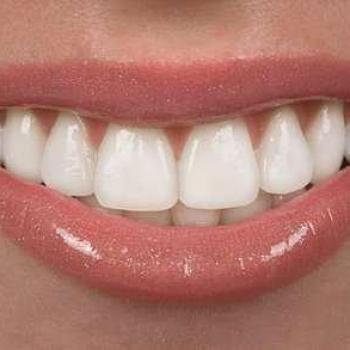 capa de porcelana para os dentes