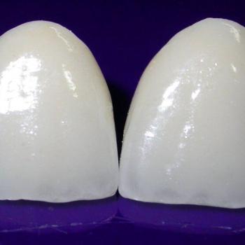 facetas de porcelana preço por dente