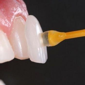 facetas porcelana dentes preço