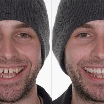 lente para os dentes