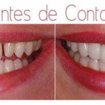 lentes de contato dentaria
