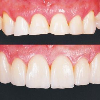 lentes dentais de porcelana