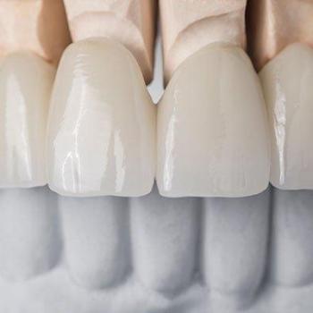 odontologia estética lentes de contato