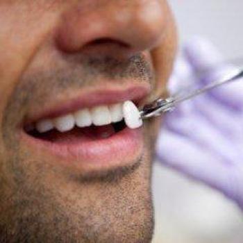 quanto custa colocar facetas de porcelana nos dentes