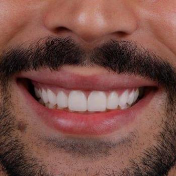 quanto custa facetas dentarias