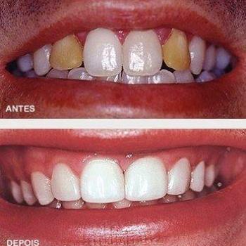 valor de dente de porcelana